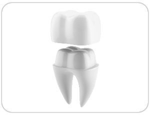 dental crown or dental cap - toronto dentist - west village dental
