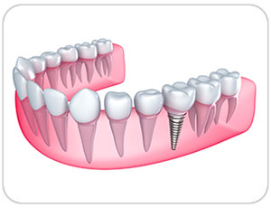 dental implants toronto - west village dental - triassi