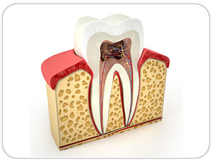 rootcanal treatment emergency dentist in toronto
