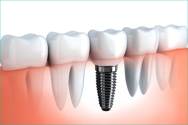 dental implants in toronto - west village dental - dr. triassi