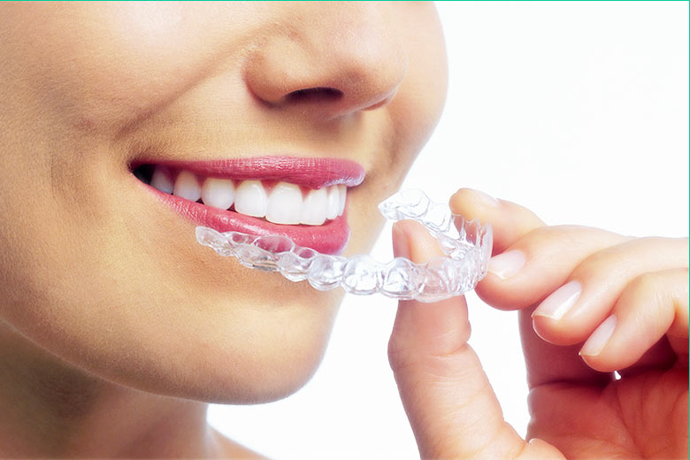 invisalign clear braces toronto west village dental clinic