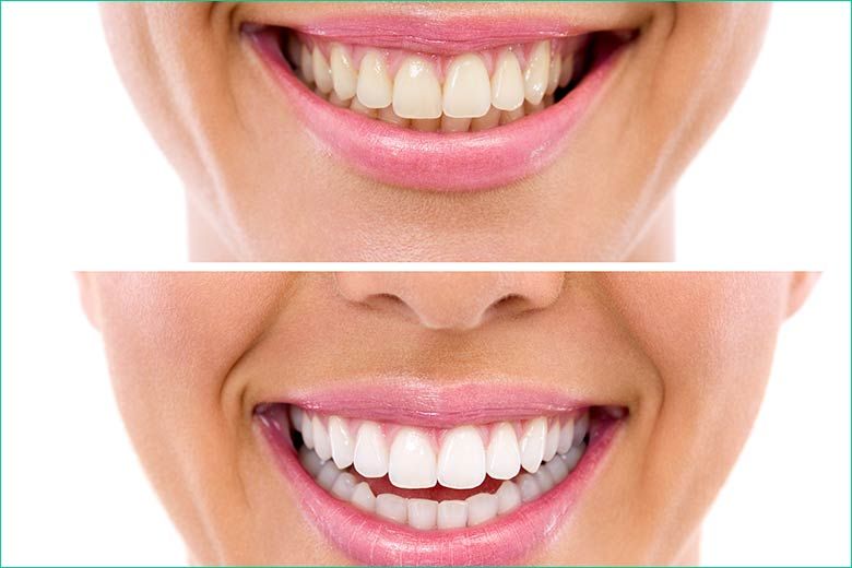teeth whitening - teeth bleaching - west village dental - toronto dentist