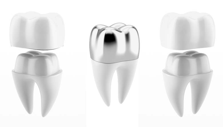porcelain dental crown, metal dental crown, porcelain fused to metal dental crown