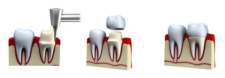 dental crown treatment steps in toronto, on